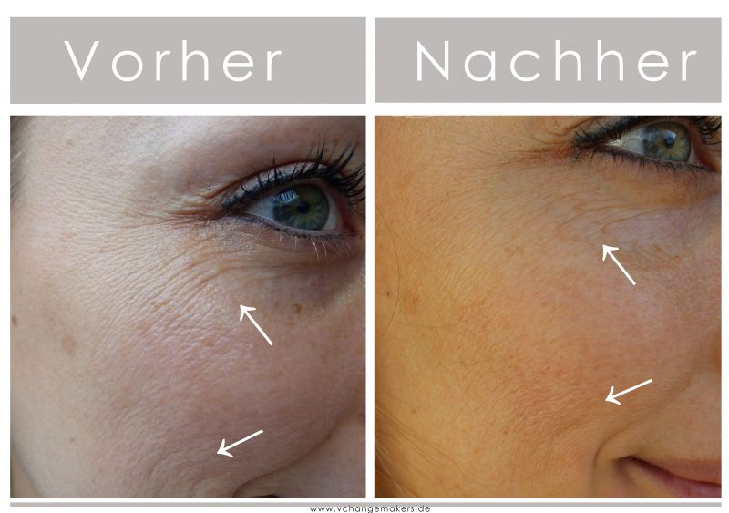 Tierversuchsfreie Gesichtspflege von Beyer & Söhne, die es tatsächlich schafft die Haut enorm zu verbessern! Falten werden reduziert dank Squalan & Hautgel+